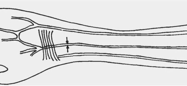We continue to evolve: more and more human beings are born with an extra artery in the arm