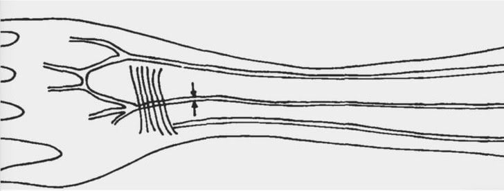 Extra artery in arm